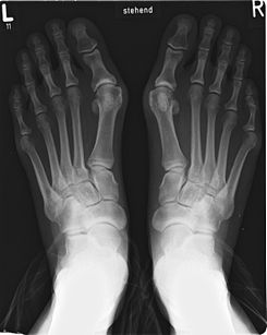 bunions treated by our podiatrists