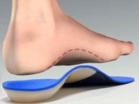 orthotics treatment for correct alignment