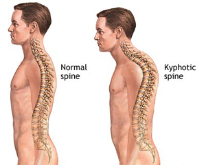 physiotherapist treatment for kyphosis