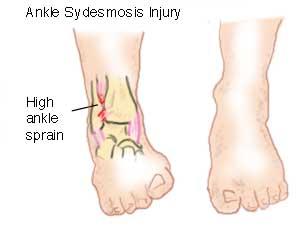 syndesmosis sprain