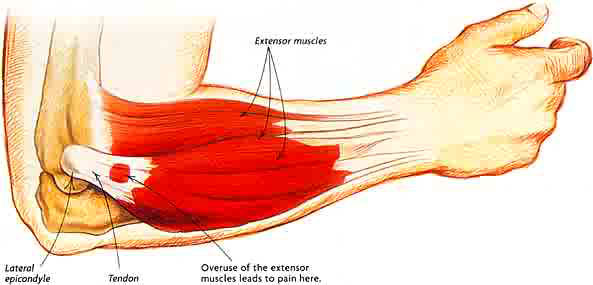 Image result for tennis elbow