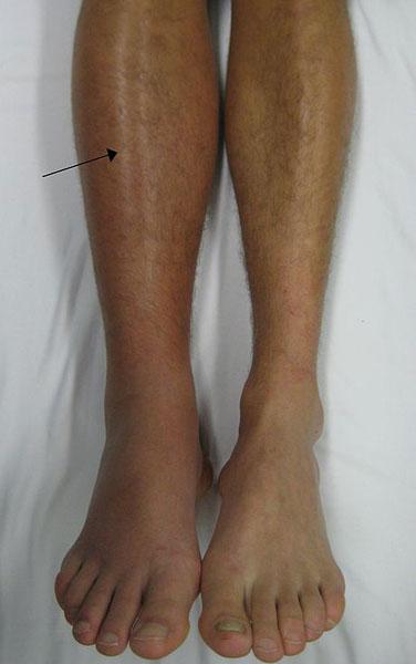 Deep_vein_thrombosis_of_the_right_leg