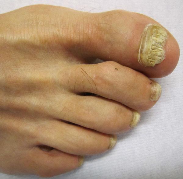Oncymycosis - toenail fungus
