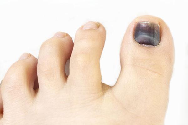 black-toenail