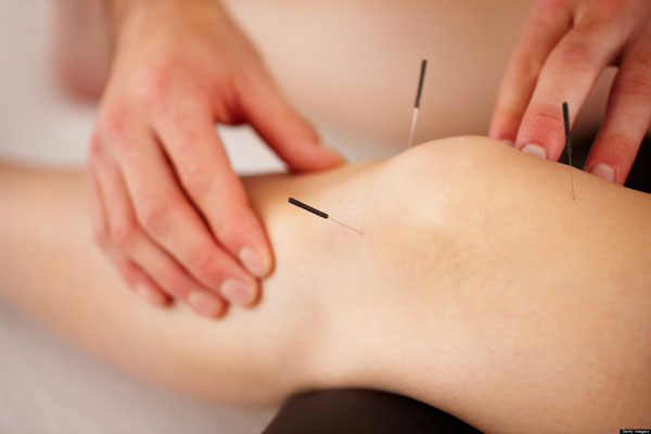knee-dry-needling