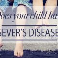 severs disease
