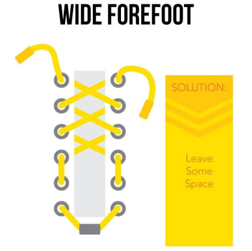 wide forefoot lacing