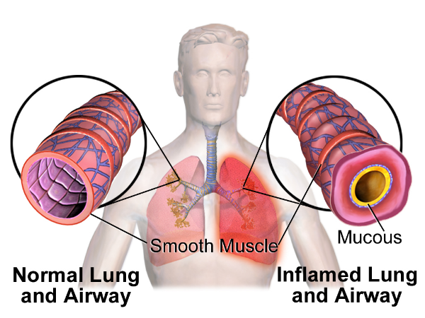 Lungs normal & inflamed