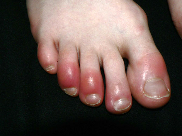 chilblains in toes