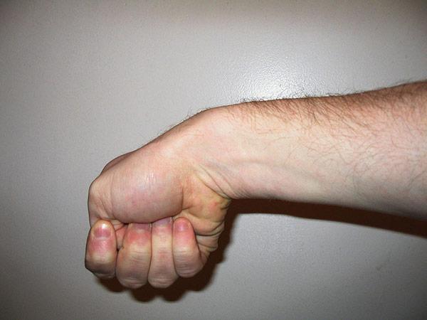 Mummy's Thumb Finkelstein's_test