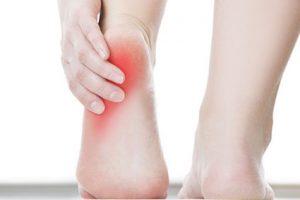 Plantar Faciitis Heel Pain
