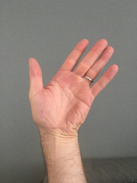 Mummy's Thumb Ulna Deviation