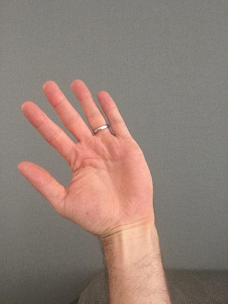 Mummy's Thumb Radial Deviation